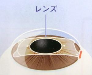 眼内コンタクト手術