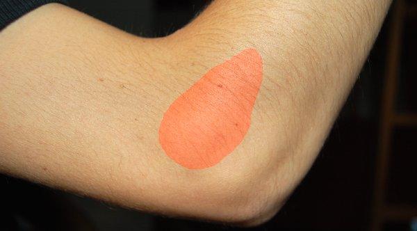 テニス肘治療