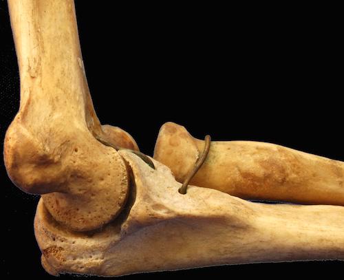 テニス肘の治療で行なうべき方法。肘が痛い症状の原因筋肉とは