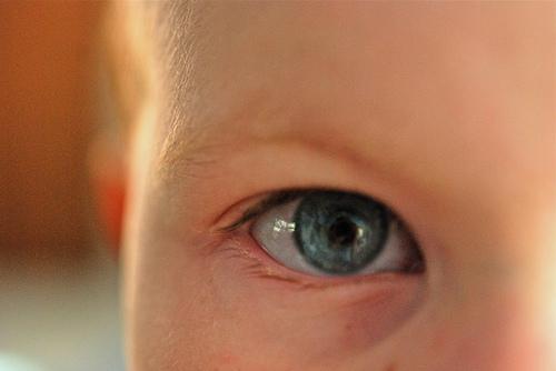 はやり目の症状と治療。2歳娘の目が充血で腫れて眼科で診察に